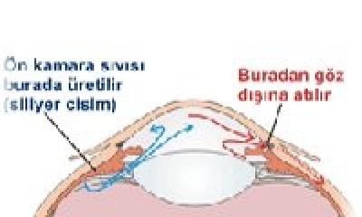 Optik Sİnir Nedir?